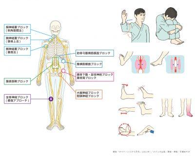 看護 医療 メディカル ヘルスケア 解剖生理 手術 骨格 イラスト 挿絵